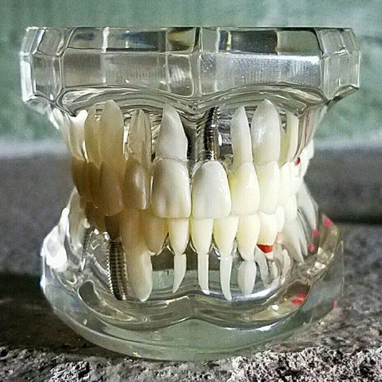 Diseased Teeth Dental Mold Curiosities Creepy Antiques