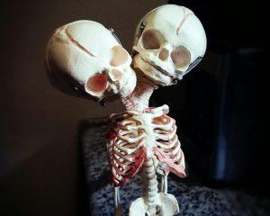 2 Headed Fetal Skeleton, 2 Headed Baby, Fetus Skeleton, Oddities, Curiosities, Weird Stuff