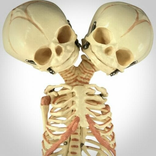 2 Headed Fetal Skeleton, 2 Headed Baby, Fetus Skeleton, Oddities, Curiosities, Weird Stuff