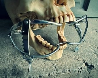 Vintage Medical Mouth Gag, Oddities Curiosities